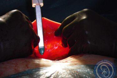 seleccion-porcion-intestinal