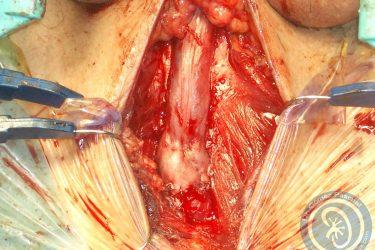 uretroplastia-termino-terminal-finalizada-sutura