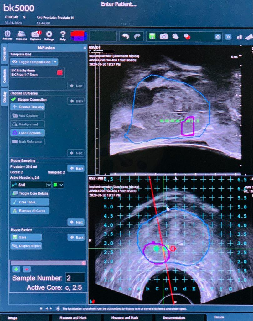 Resonancia Magnética Multiparamétrica de Próstata | CUN